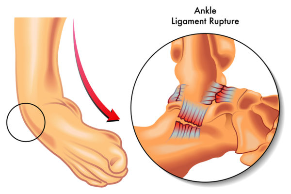 Fix Ankle Sprains Forever