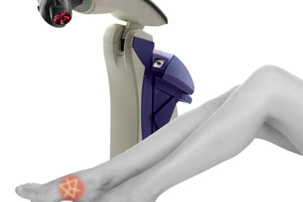 10 Benefits of MLS Laser Therapy