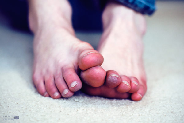 Prevent Frostbite on Feet & Toes