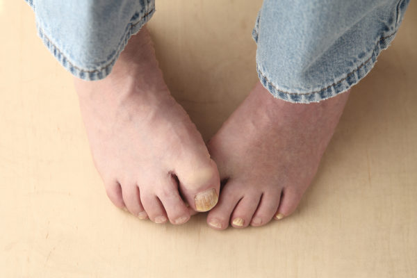 Get Rid of Toenail Fungus: The Podiatrist's Guide